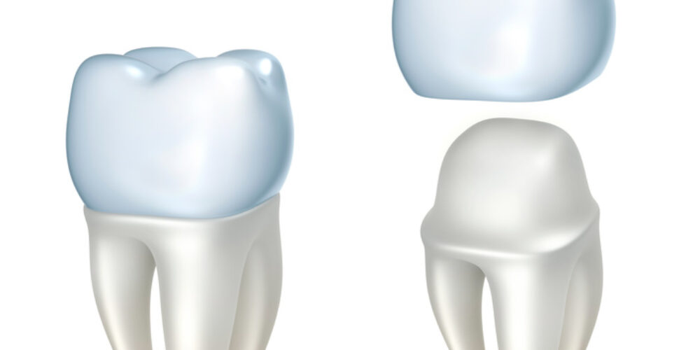 What Are The 4 Types Of Dental Crowns And How Can They Repair My Smile?
